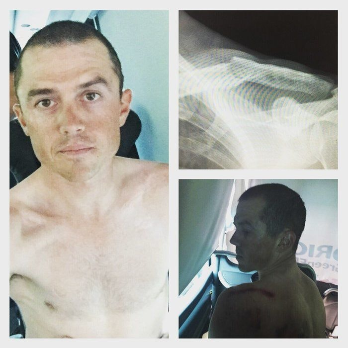 Simon Gerrans broken collarbone Tour de France 2016 BikeExchange